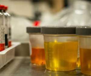 Warga: Pak Bupati, Kapan Tes Urine ASN dan THL Nagan Raya Dilakukan?
