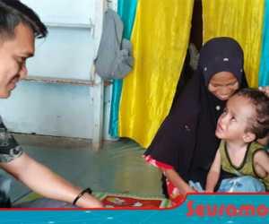 Bocah Penderita Hidrosefalus Nagan Raya Butuh Bantuan Para Dermawan