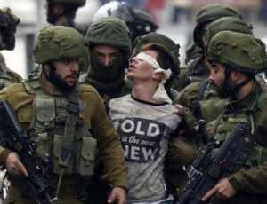 Oknum Polisi Israel Tembak Mata Bocah Palestina