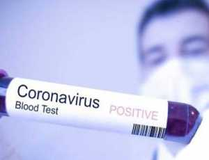 Positif Corona, Bupati Dilarikan Kerumah Sakit