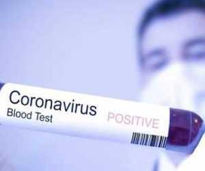 BREAKING NEWS - RSU Sultan Iskandar Muda Rawat Dua Pasien Reaktif Corona