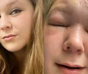 Akibat Tak Gunakan Masker, Gadis Ini Alami Pembengkakan Pada Wajah