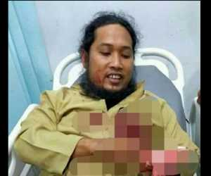 Tengah Mengisi Ceramah, Seorang Ustadz di Aceh Tenggara Ditikam