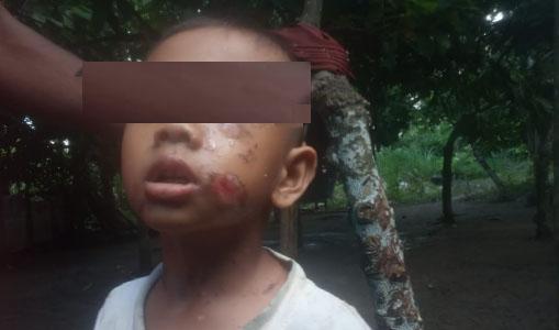 """Sadis! Anak Tunawicara di Aceh Utara """"Dibakar"""" Ayah Kandung"""